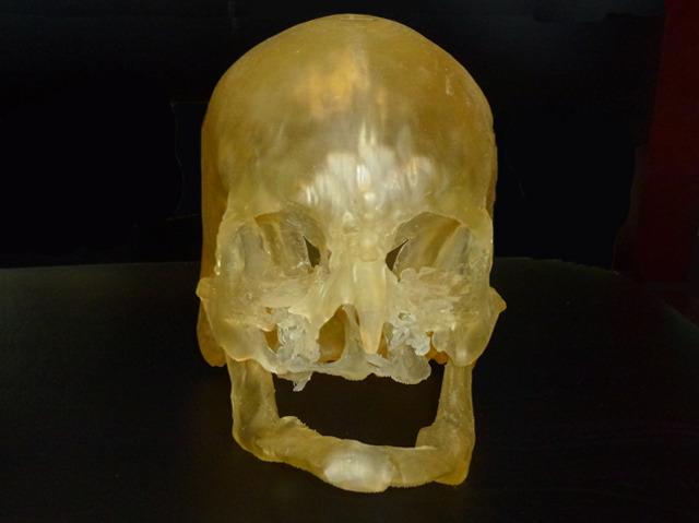 Modelling Face Transplants
