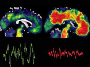 Brain-saving Sleep