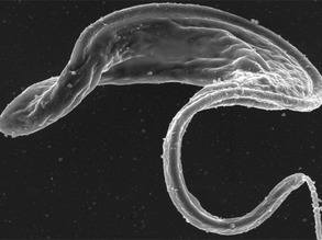 Targeting Trypanosomes