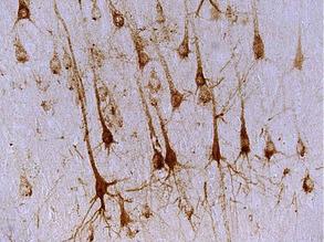 Wintery Neurons
