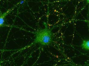 Nerve Cell Nurturing