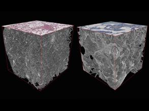 Lung Cubes