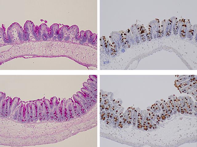 Bacteria versus Parasites
