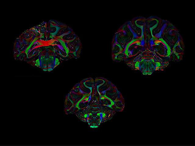 The Attentive Brain