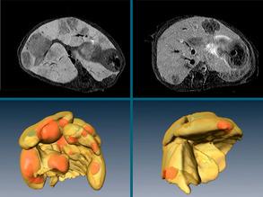 Suppressing Liver Cancer