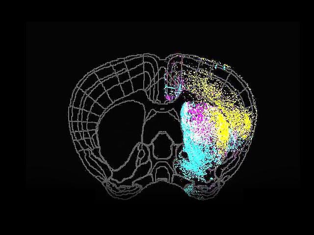 BPoD    Deep Brain Signals