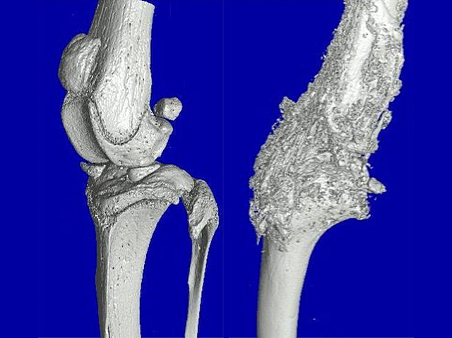 Patchless Bones