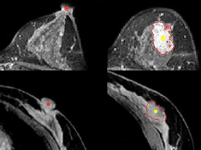 Pinpointing Breast Cancer