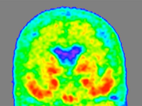 Accessible Alzheimer's Biomarker