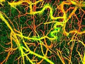 Brain Veins