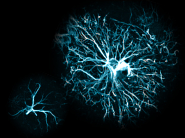 Astrocyte Might