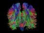 Ageing Brains