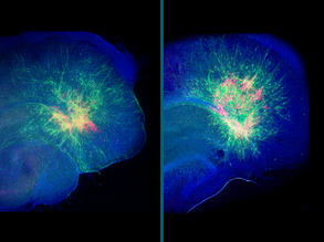 Migrating Neurons