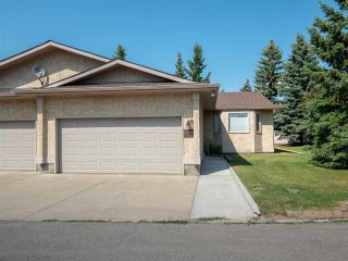 Main Photo: 141 KNOTTWOOD Road N in Edmonton: Zone 29 Townhouse for sale : MLS®# E4121038