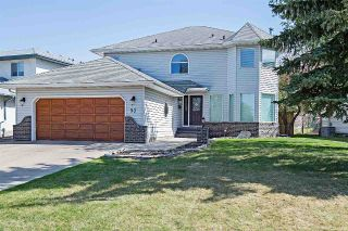 Main Photo: 57 Chelsea Way: Sherwood Park House for sale : MLS®# E4104376