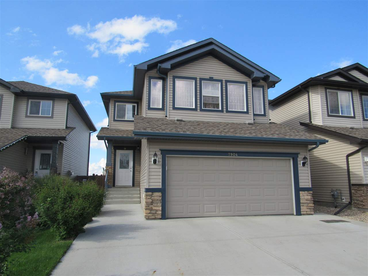 Photo 1: 7904 173 Avenue in Edmonton: Zone 28 House for sale : MLS(r) # E4058384