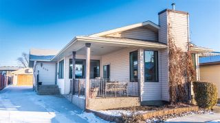 Main Photo: 300 DUNLUCE Road in Edmonton: Zone 27 House for sale : MLS® # E4097408