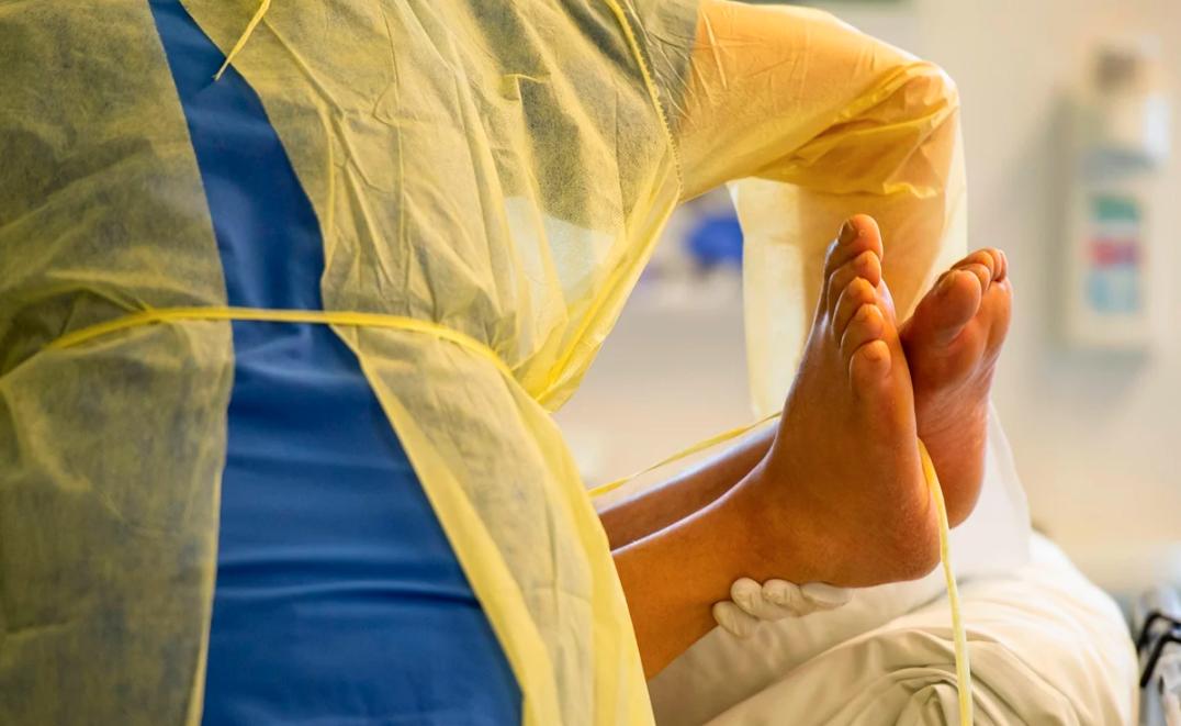 Un estudio describe problemas linguales y alteraciones palmoplantares como síntomas del coronavirus