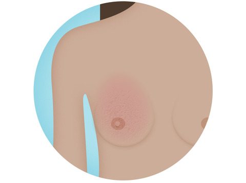 breast cancer early detection signs and symptoms appearance