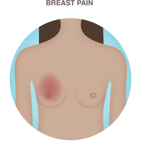 Nipple tenderness and fibrocystic breast