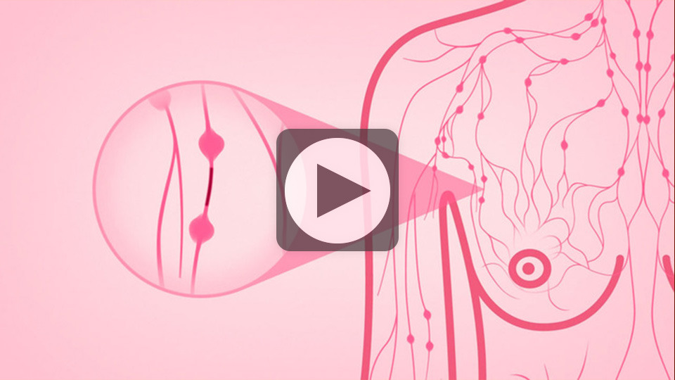 breast pain - national breast cancer foundation, Skeleton