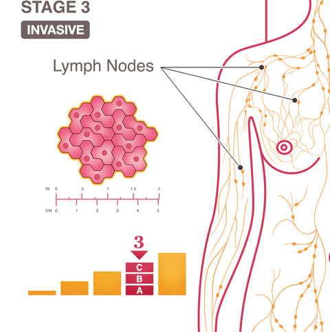 breast cancer stage 3
