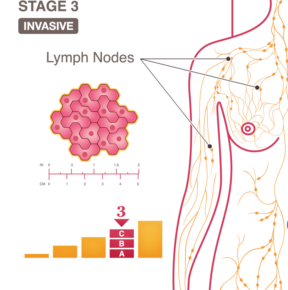 cancer breast 3rd stage