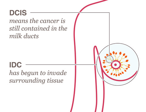 breast cancer invasive ductal carcinoma difference