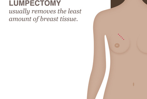 breast cancer treatment lumpectomy