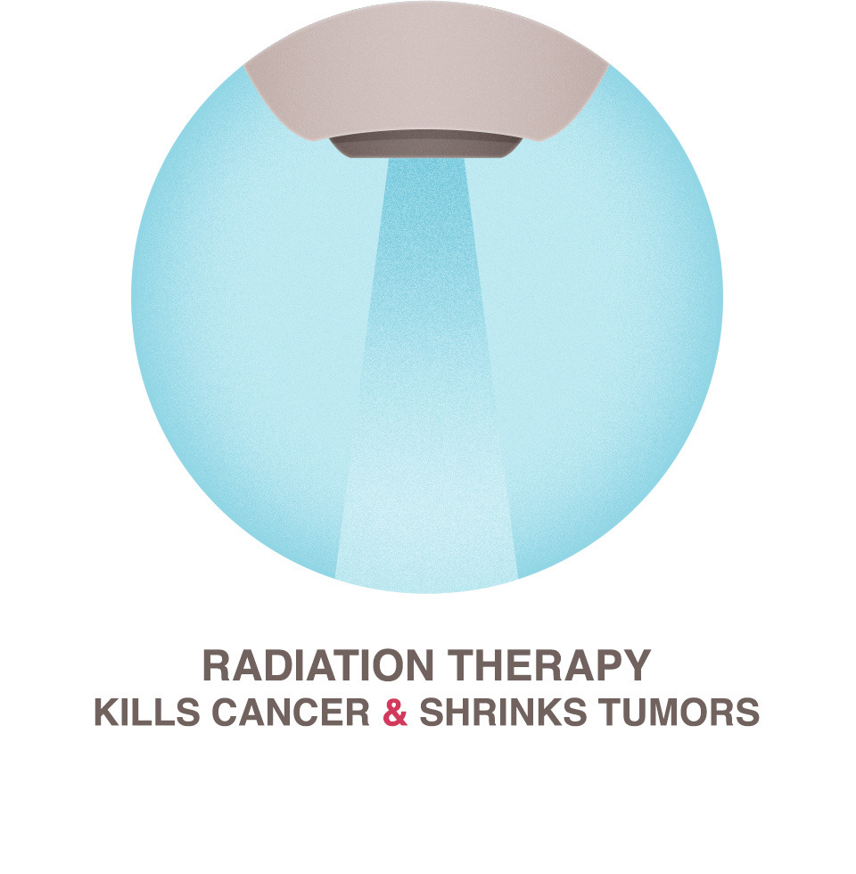 radiation therapy national breast cancer foundation