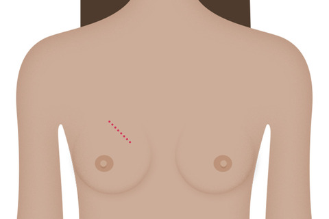 breast cancer treatment surgery lumpectomy