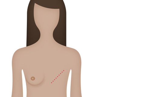 treatment should remove had breast still