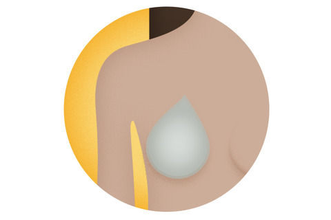 breast cancer treatment surgery reconstruction