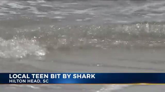 Teen recounts being attacked by shark near Hilton Head