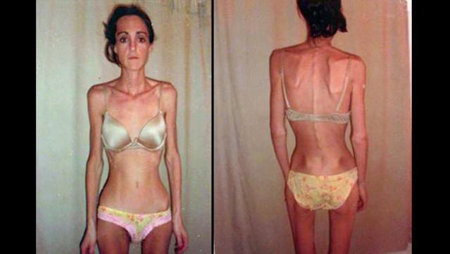 r-eating-disorder-1-web_bkg_305381
