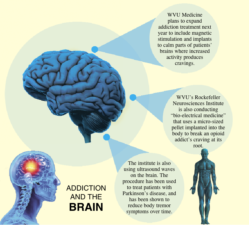 Brain Work Researchers Focus In On Neurological Side Of Substance