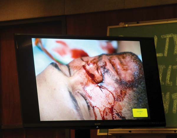 A slash across Kalani Wright's face is shown in a police photo taken Jan. 1 at Maui Memorial Medical Center. The Maui News / LILA FUJIMOTO photo