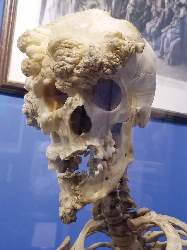 Joseph Merrick's actual skull; Ricky Jones photo