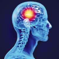stroke 3 brain