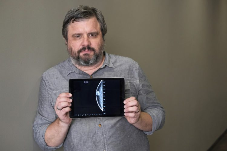 Associated Press reporter Andrew Dalton holds an iPad displaying an image of his mammogram in downtown Los Angeles. Dalton described his experience as the rare man who underwent a mammogram in a story for the AP.  (AP Photo/Richard Vogel)