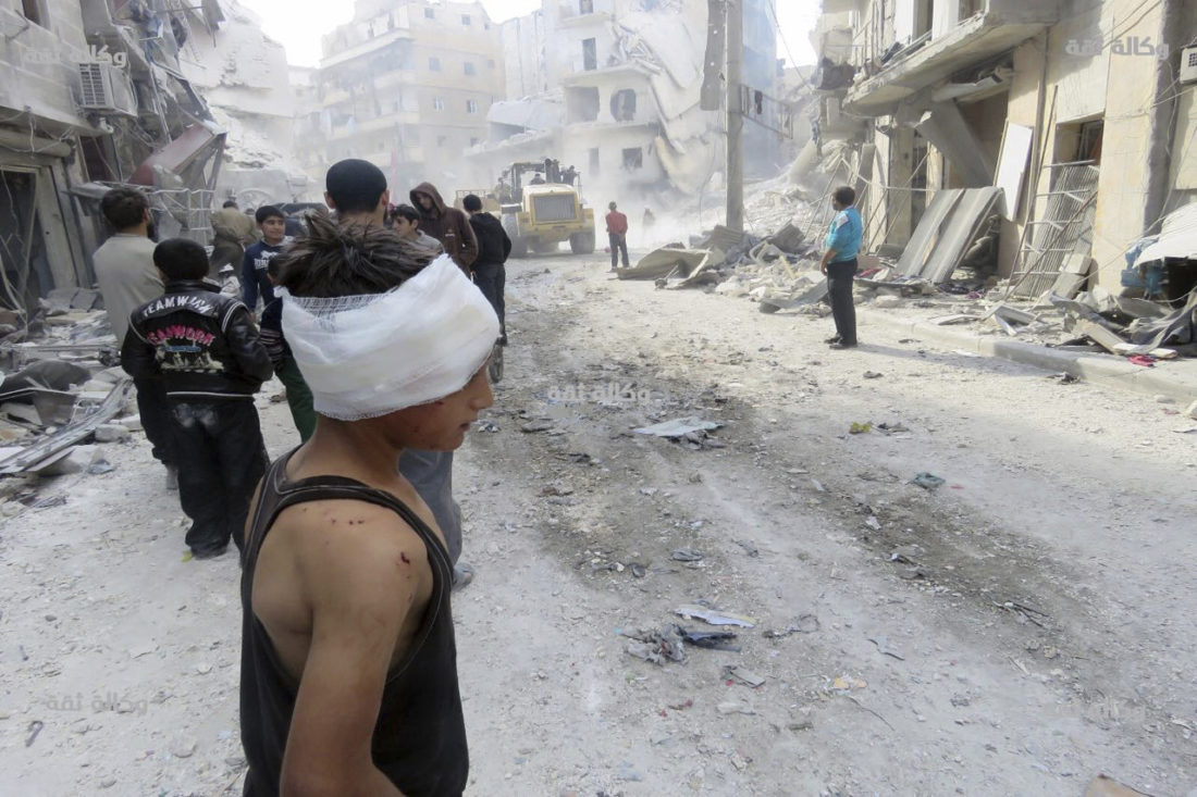 AP PHOTO This image released by Thiqa News Agency shows an injured child after airstrikes in Aleppo, Syria, Wednesday.