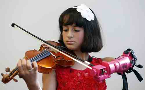 AP photos Ten-year-old Isabella Nicola Cabrera plays her violin with her new prosthetic at the engineering department of George Mason University in Fairfax, Va. A group of five bioengineering students designed a new prosthetic for Isabel to play the violin.