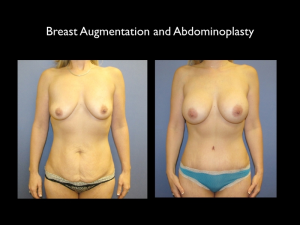 Breast Augmentation Rapid City SD