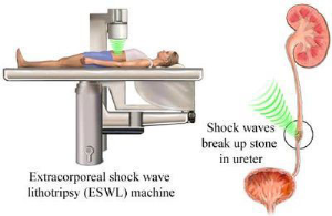 Extracorporeal shock wave lithotripsy (ESWL)