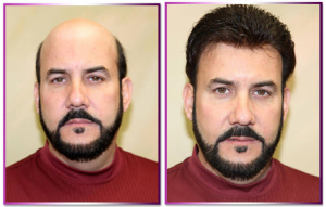 Mens Hair Spa Treatments Dubai