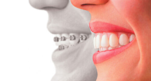 Orthodontic Treatment Dubai