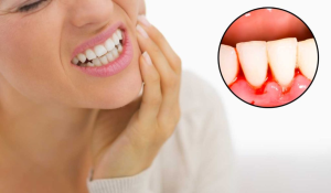Bleeding Gum Treatment in Dubai