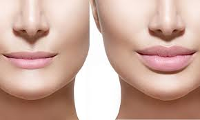 nose surgery treatment in Hyderabad