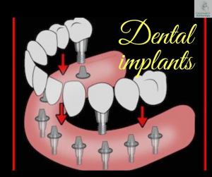 Dental Implant Greenbelt MD