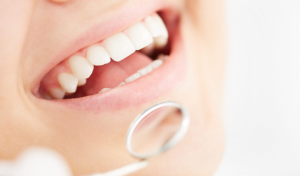 Gum Disease Treatment in Dubai
